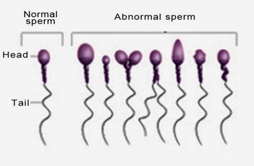 Masalah sperma yang tak berkualiti